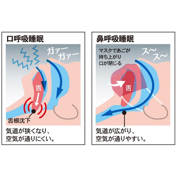 原因 舌根 沈下 睡眠時無呼吸症候群の対策❷ 気道を狭める【舌の沈み込み】を防ぐ「舌回し」 カラダネ